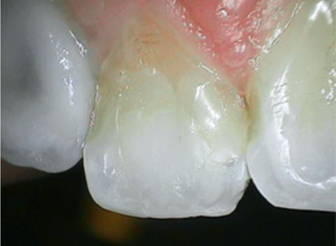 tooth_1_f7d7bd15-b6d8-4d1c-808e-7686f4e2c4b0_large