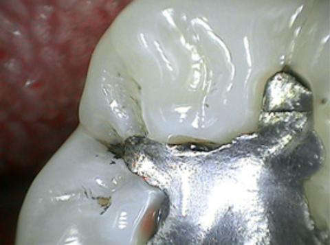 tooth_3_e978e990-3ce8-4e42-97e4-f3678b2ad760_large